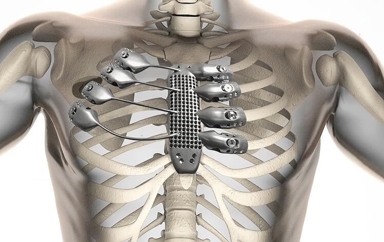 Sternum 3D Print Medical Device